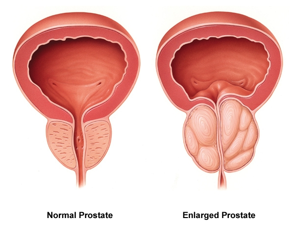 Adenome Prostate Hypetrophie